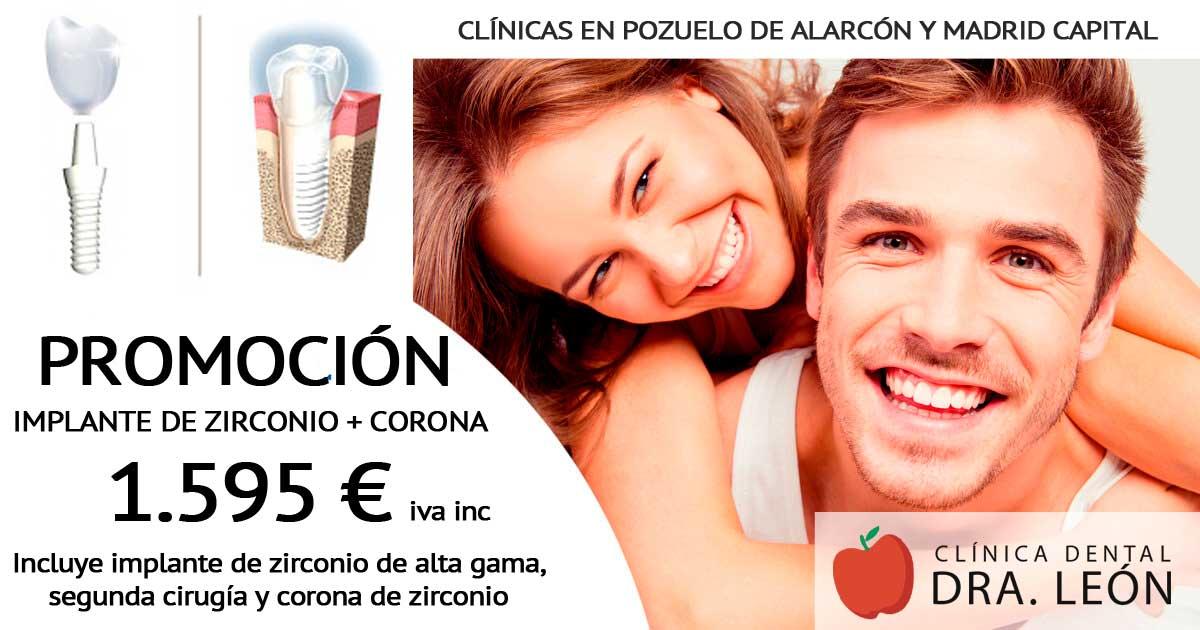 promoción de implantes dentales en Pozuelo de Alarcón