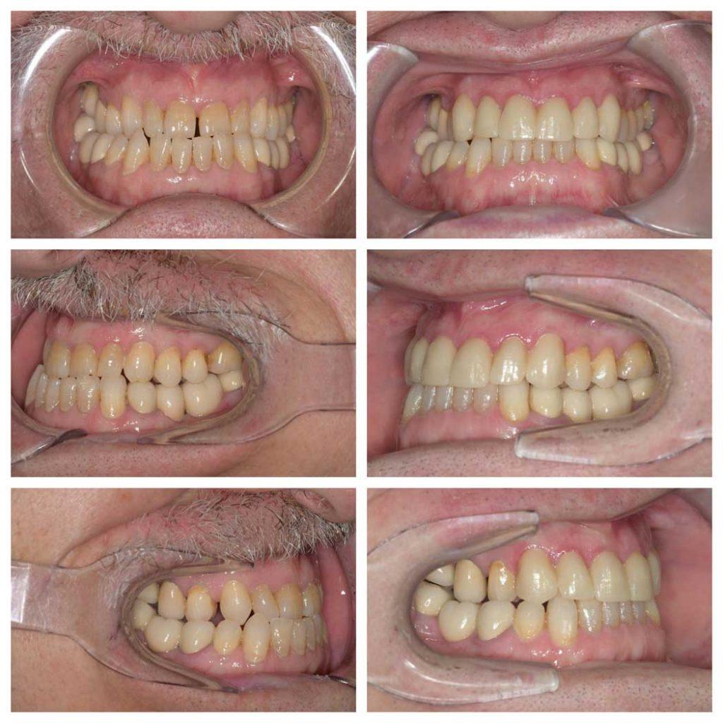 resultados de paciente con invisalign y coronas de zirconio
